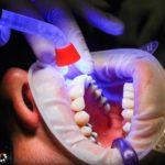 Zła dieta żywienia się to większe deficyty w zębach oraz także ich zgubę